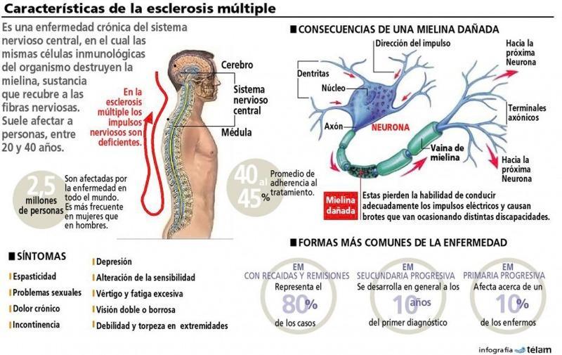enfermedad sistema nervioso central: