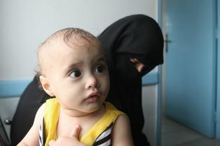 En Yemen, cada diez minutos muere un niño menor de cinco años