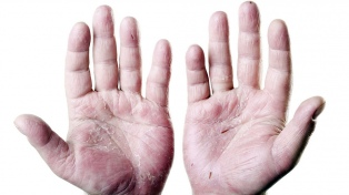 Realizarán una campaña gratuita para detectar casos de artritis psoriásica