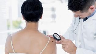 Realizan una campaña para prevenir el melanoma, un cáncer de piel que mata a 550 argentinos al año