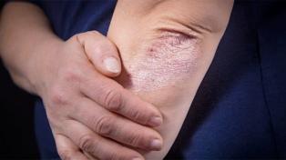 Realizan una campaña de detección gratuita de psoriasis y artritis psoriásica