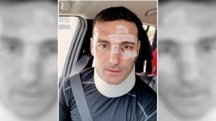 Scaloni dijo que está bien y se queja de quienes magnificaron el accidente