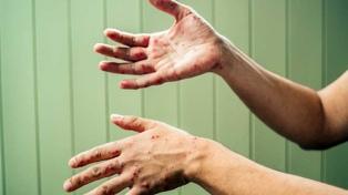 La OMS advierte que se triplicó el número de casos de sarampión en el mundo