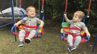 Apareció una donante y dos gemelos se preparan para el primer trasplante de médula simultáneo