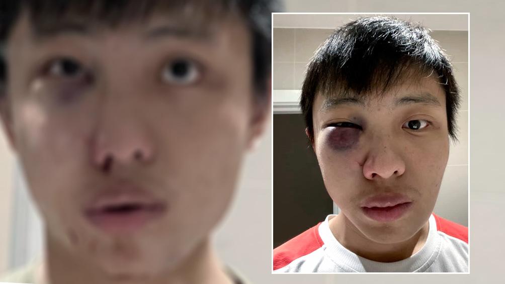 Detienen a dos adolescentes por un ataque racista relacionado con el coronavirus