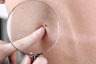 """Presentan una campaña contra el melanoma que busca """"poner de moda"""" el chequeo anual de lunares"""