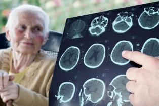Descubren que el recambio plasmático frena el avance del mal de Alzheimer