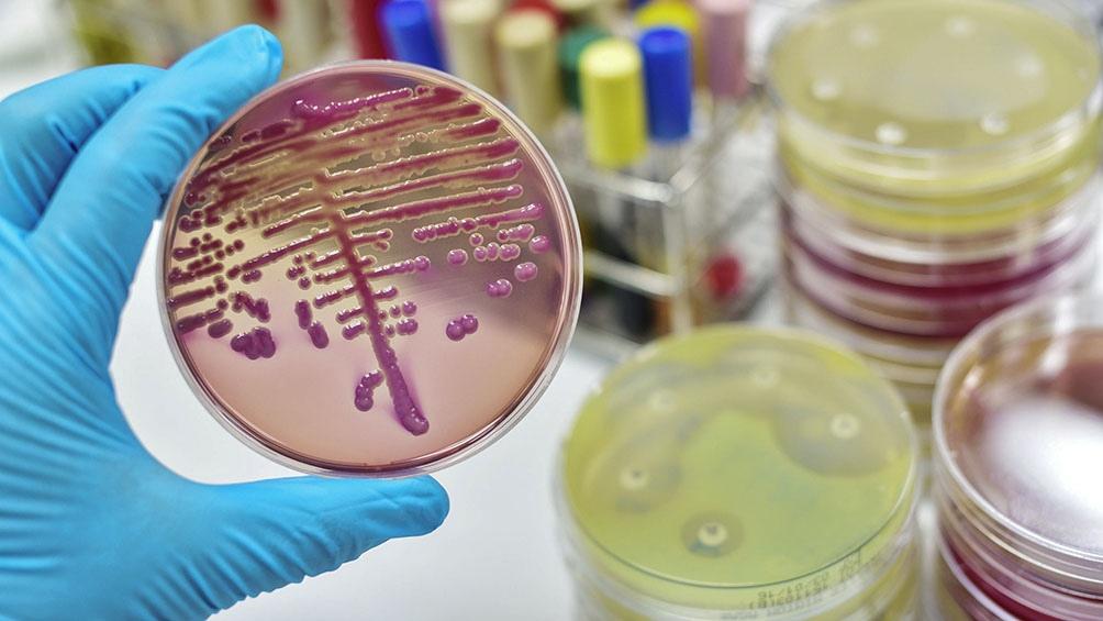Los antibióticos nuevos no combaten la farmaciorresistencia de las bacterias peligrosas.