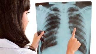 El cáncer de pulmón es uno de los que más muertes ocasiona.
