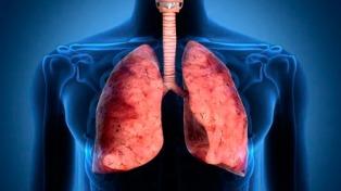 Desarrollan un sistema para la detección del cáncer de pulmón