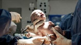 """Nació en Argentina el primer bebé de Sudamérica por """"transferencia de huso"""""""