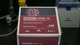 Cómo son los test de diagnóstico rápido de coronavirus que aprobó la Anmat