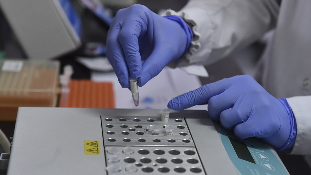 Gracias al desarrollo se puede detectar el virus a la mitad del precio que las pruebas actuales existentes en el mercado internacional. Foto: Alejandro Santa Cruz (Télam).
