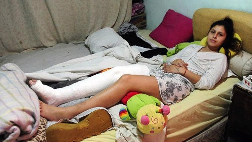 Norma Gómez sufrió golpes y la fractura de la tibia y el peroné
