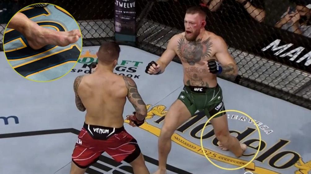 McGregor en el momento de su fractura.