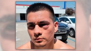 Fabián Maidana sufrió un corte en un entrenamiento y no peleará por el título mundial
