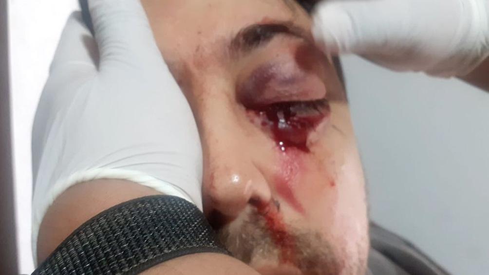 Esteban B. fue trasladado a una clínica donde constataron la gravedad de la herida.