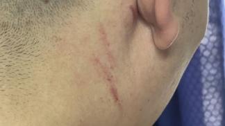 El acusado presentó lesiones compatibles con rasguños.